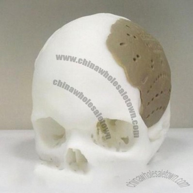 3D Printing Skull For Medical Industry